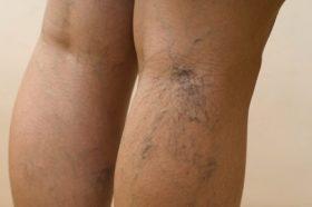 Tratamiento-de-las-varices-sin-curgC3ADa-280x186-9172181.jpg